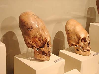 Вытянутые черепа Паракаса